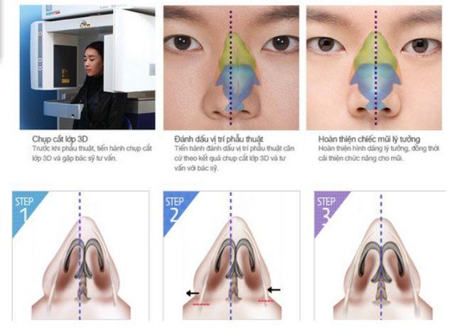 Chỉnh hình toàn diện dáng mũi với CN nâng mũi S-line 3D