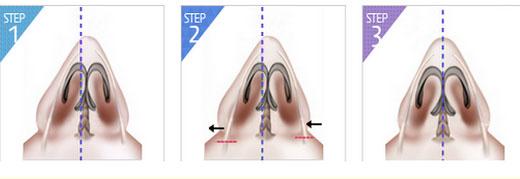 Mô hình chỉnh sửa mũi gồ, mũi lệch bẩm sinh