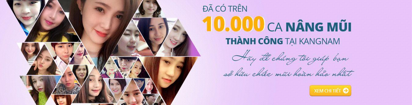 Hơn 10000 ca nâng mũi thành công tại Kangnam