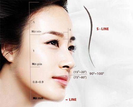 Nâng cao sống mũi kiểu Hàn Quốc