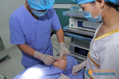 Các chuyên gia chia sẻ nâng mũi bằng sụn nhân tạo được thực hiện như thế nào?