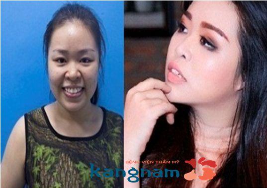 Sao Việt nói gì sau nâng mũi tại Kangnam 3
