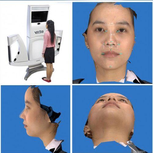 Bị viêm mũi dị ứng có nâng mũi được không? - Giải đáp bằng mô hình