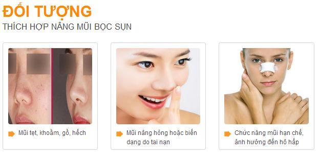 thu-can-3-cong-nghe-nang-mui-dinh-dam-han-quoc-boc-sun-s-line-3d