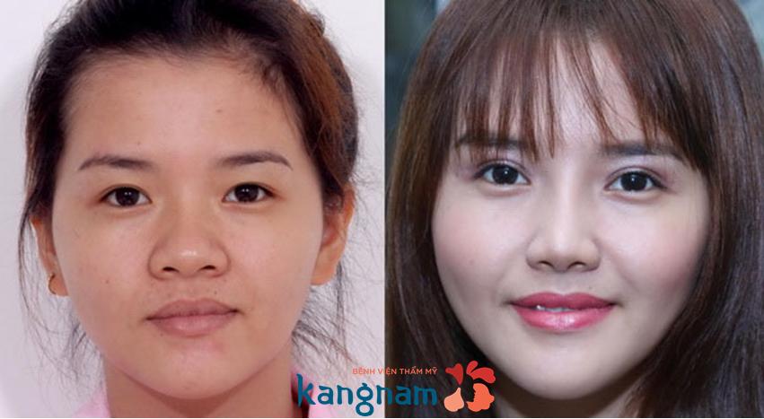 Trước và sau khi nâng mũi s line tại BVTM KANGNAM