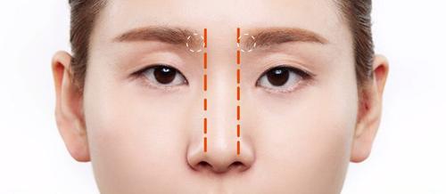 Cánh mũi rộng và cách khắc phục hiệu quả