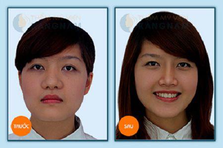 Kết quả thu gọn cánh mũi to dày tại Kangnam