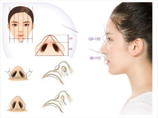 Mô hình giải đáp phẫu thuật cắt cánh mũi được thực hiện thế nào?