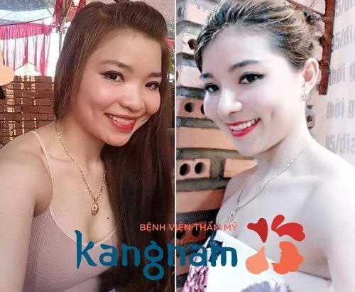 Khách hàng Kangnam chia sẻ cắt cánh mũi bao lâu thì lành?