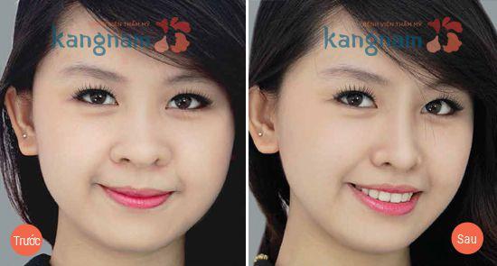 cat-canh-mui-co-de-lai-seo-khong2