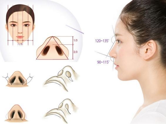 Mô hình giải đáp thu gọn cánh mũi có nguy hiểm không?