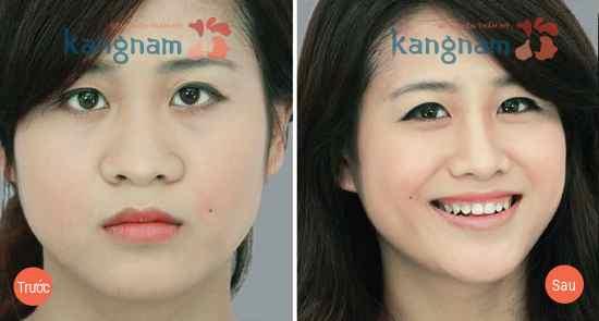 Sau khi bấm mí mắt tại Kangnam xong thì mình có làm thêm thu gọn cánh mũi