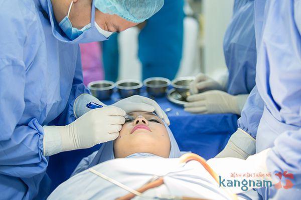 Cắt cánh mũi ở Kangnam 4