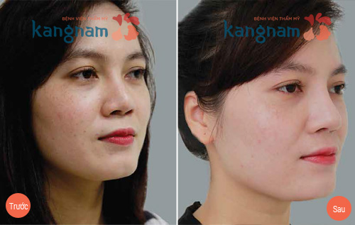Kết quả sửa mũi hỏng sau nâng tại Kangnam