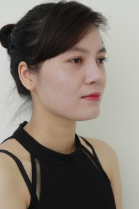 chi-thanh-huong-toi-da-sua-duoc-mui-hong-sau-nang-tai-kangnam-nhu-nao54