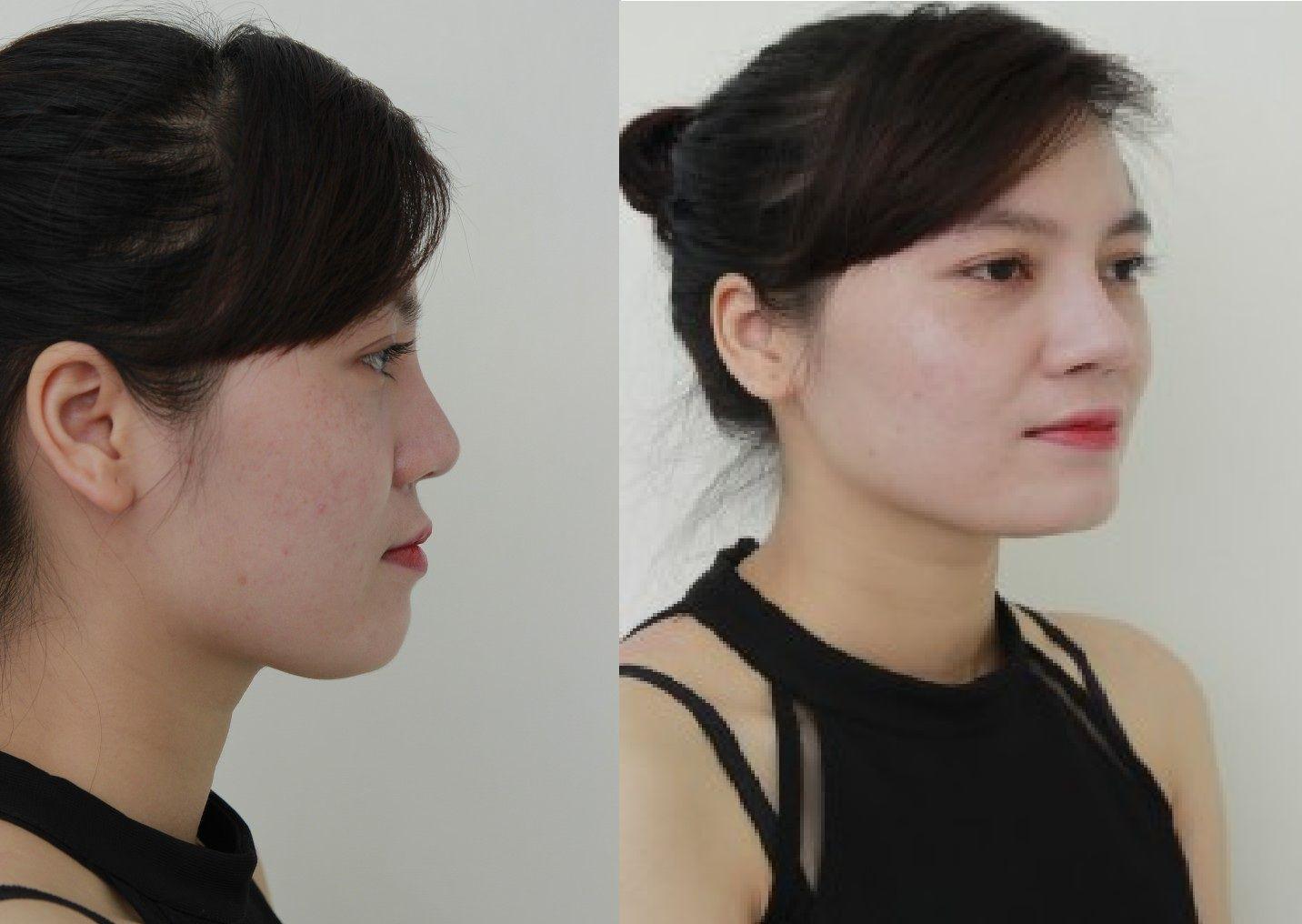 chi-thanh-huong-toi-da-sua-duoc-mui-hong-sau-nang-tai-kangnam-nhu-nao98-683x1024