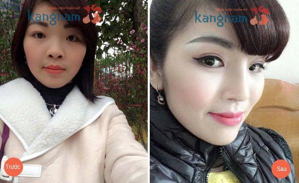 Chị Ngọc Hà chia sẻ kết quả sau nâng mũi bọc sụn tại Kangnam