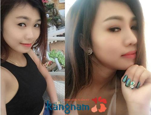 Chuyên khoa thẩm mỹ mũi Kangnam 10