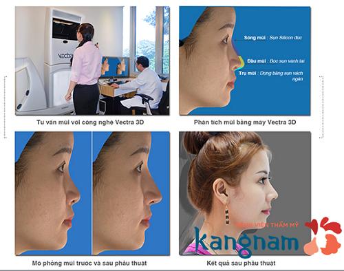 Chuyên khoa thẩm mỹ mũi Kangnam 6