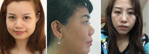 Chuyên khoa thẩm mỹ mũi Kangnam 8
