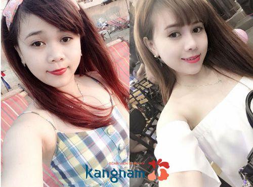 Chuyên khoa thẩm mỹ mũi Kangnam 9