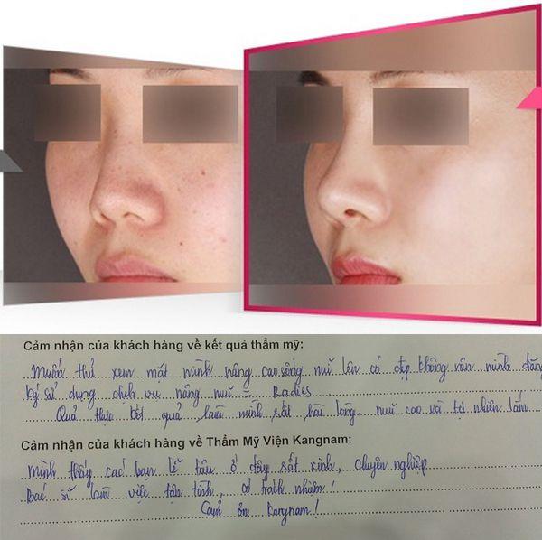 Ai quan tâm đã ai nâng mũi không phẫu thuật chưa chắc chắn muốn biết kết quả thẩm mỹ