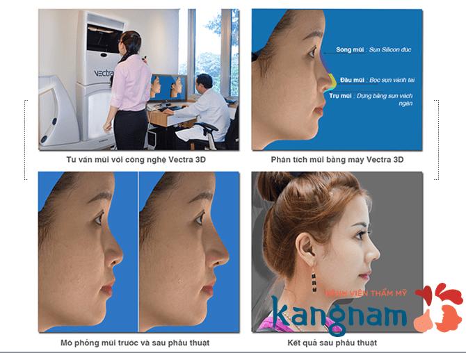 Mô hình giải đáp có nên nâng mũi bằng chỉ không?