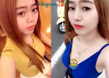 Kết quả nâng cao sống mũi tại BVTM Kangnam