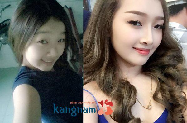 Hình ảnh trước và sau khi nâng mũi 5