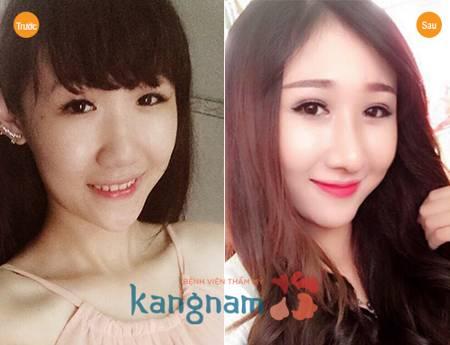 Huỳnh Như tự tin chia sẻ sau nâng mũi có để lại sẹo không?