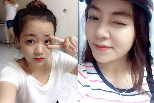 """List 5 lý do khiến nâng mũi tại Kangnam """"hút"""" khách 1"""
