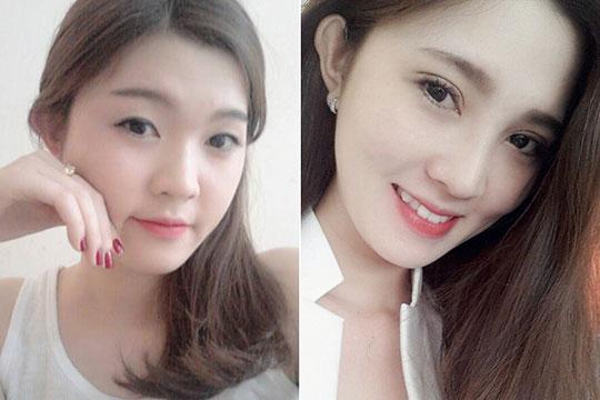 """Nâng mũi đẹp: Chuẩn Hàn Quốc - Giá """"Việt Nam"""" 3"""
