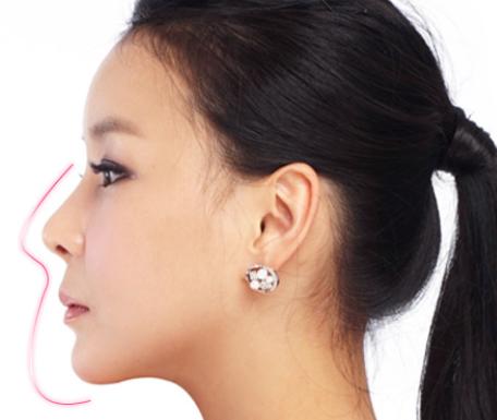 Kết quả nâng mũi được bao lâu?