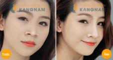 Kết quả 5 Phẫu thuật thẩm mỹ nâng mũi tại kangnam