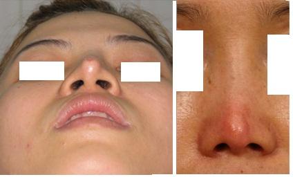 Kết quả hình ảnh cho site:nangmuidep.vn nâng mũi có di chứng không