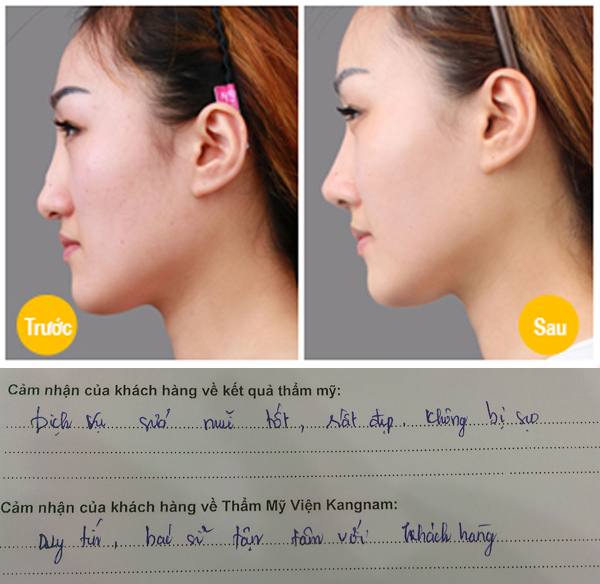 Phẫu thuậtkết quả Phau thuat sửa mũi vẹo,lệch đẹp tự nhiên hơn