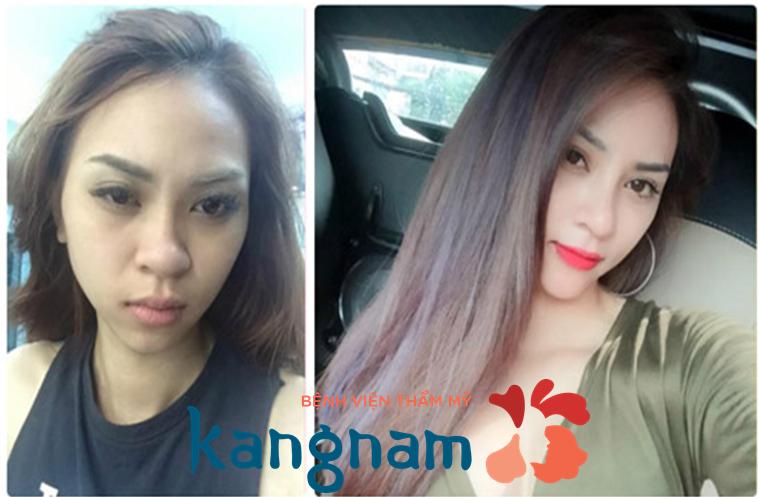 Kim Anh chia sẻ nâng mũi tại thẩm mỹ viện Kangnam có tốt không?