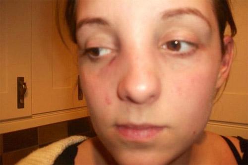 Kết quả sửa mũi gãy bẩm sinh tại Kangnam