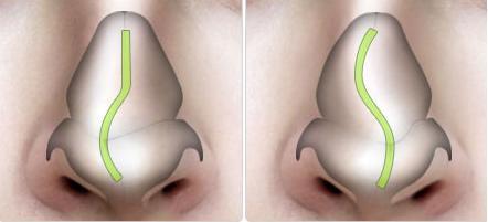 Giải đáp mũi gãy là như thế nào?