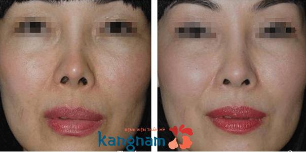 Hình ảnh trước sau chỉnh sửa mũi bị lệch bằng công nghệ nâng mũi s line tại Kangnam