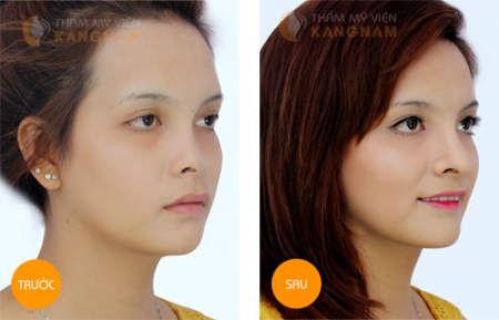 nâng mũi S-line 3D