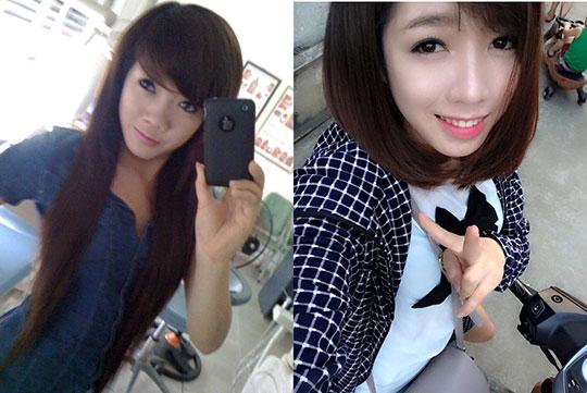 """Nâng mũi đẹp: Chuẩn Hàn Quốc - Giá """"Việt Nam"""" 4"""