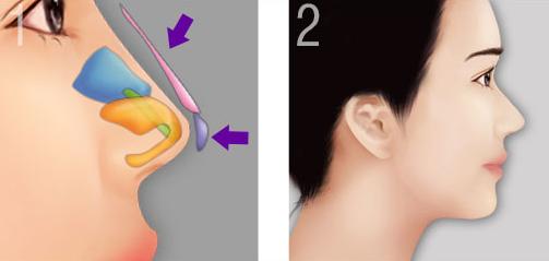 Mô phỏng nâng mũi bằng sụn tại có để lại sẹo không?