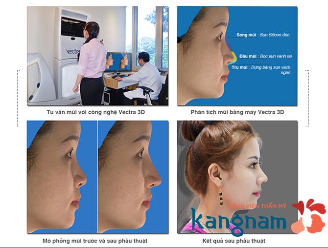 Nâng mũi bằng sụn tự thân 2