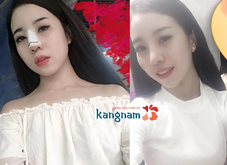 Sau khi phẫu thuật nâng mũi tại thẩm mỹ kangnam