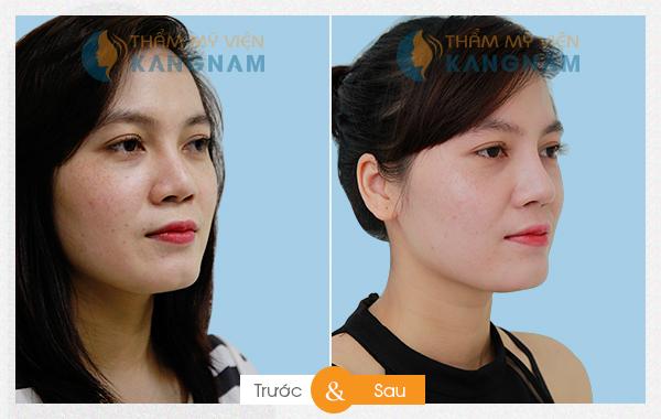 nang-mui-boc-sun 12