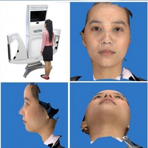 Mô hình phẫu thuật nâng mũi s line 3D tại Kangnam