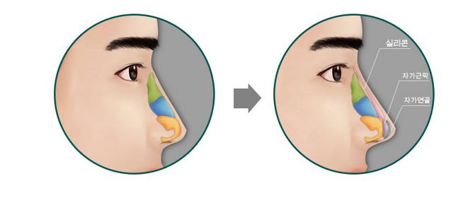 Đảm bảo an toàn tuyệt đối khi nâng mũi cho con trai