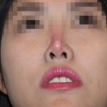 Nâng mũi có bị biến chứng không? – Hỏi đáp cùng chuyên gia