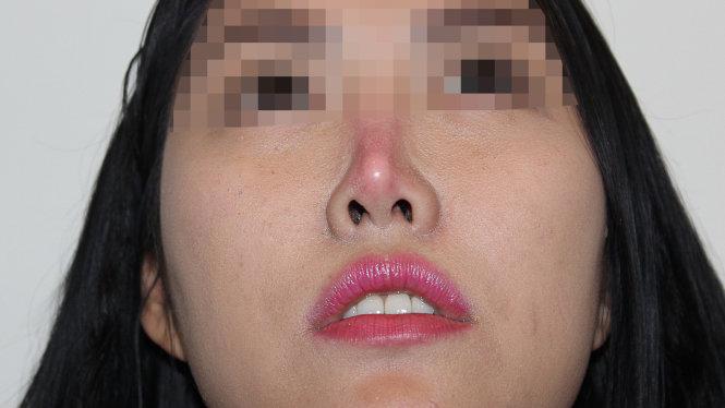 Phẫu thuật nâng mũi có bị biến chứng không?